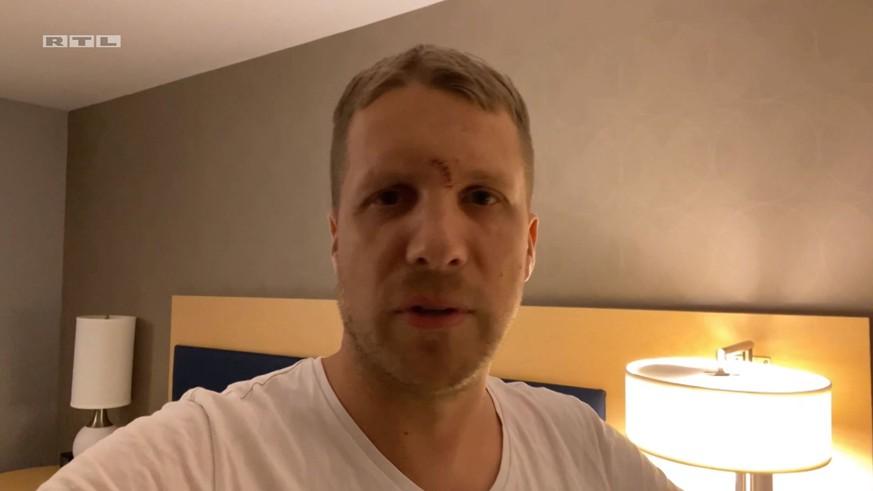 Oliver Pocher Verletzt