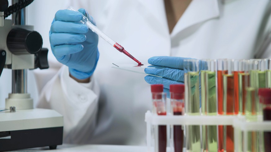 Biochemical research of blood, lab assistant doing microbiological analysis