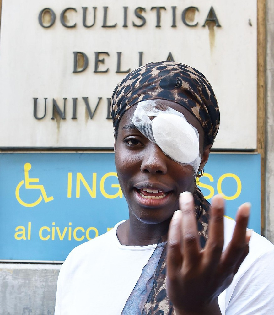 Discus thrower Daisy Osakue talks with reporters outside a hospital in Turin, Italy, Monday,  July, 30 2018. The 22-year-old  Osakue risks missing the European Athletics Championships after being hit in the eye with an egg that damaged her cornea,  in a perceived racist attack. (Alessandro Di Marco/ANSA via AP)