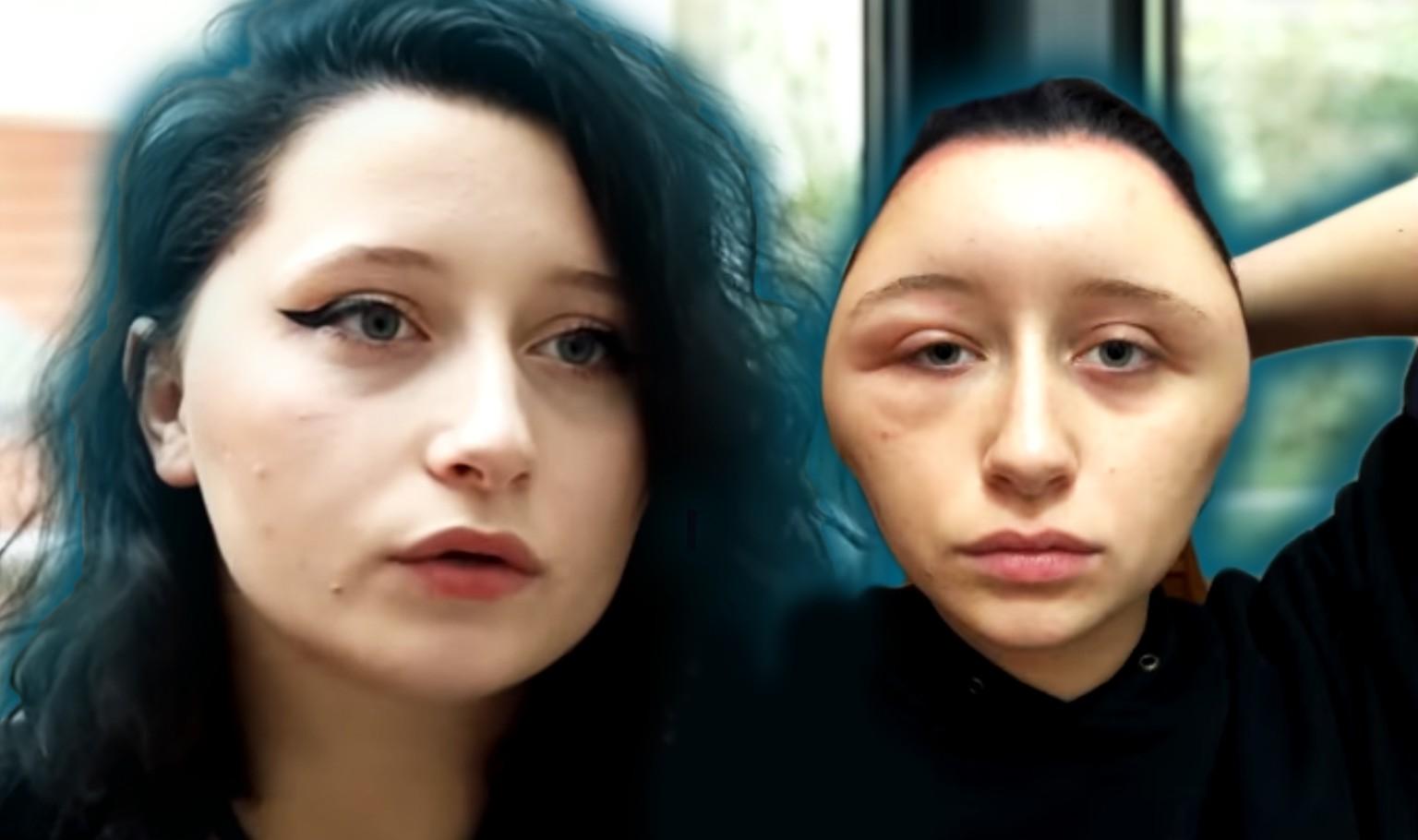 Haarfarben Allergie Estelles 19 Kopf Schwillt Auf Doppelte Größe